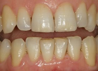 After - Queensdental