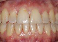 After - The Queens Dental Practice