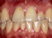 Before - The Queens Dental Practice