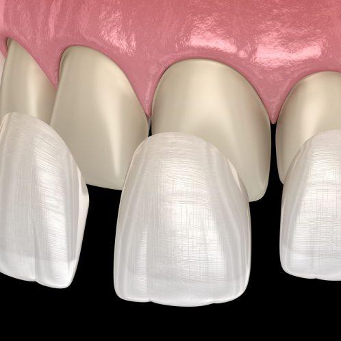 Treatment - The Queens Dental Practice